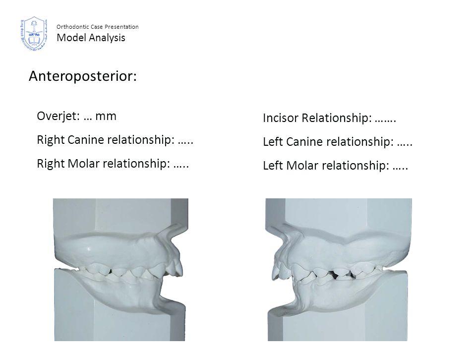 Orthodontic Case Presentation Model Analysis Anteroposterior: Incisor Relationship: ……. Left Canine relationship: ….. Left Molar relationship: ….. Ove