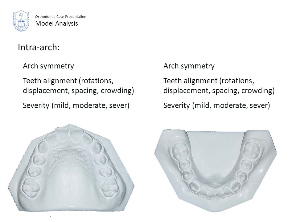 Orthodontic Case Presentation Model Analysis Intra-arch: Arch symmetry Teeth alignment (rotations, displacement, spacing, crowding) Severity (mild, mo