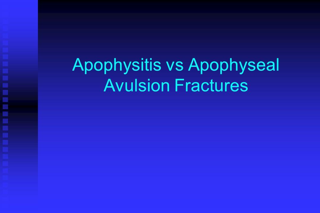 Apophysitis vs Apophyseal Avulsion Fractures