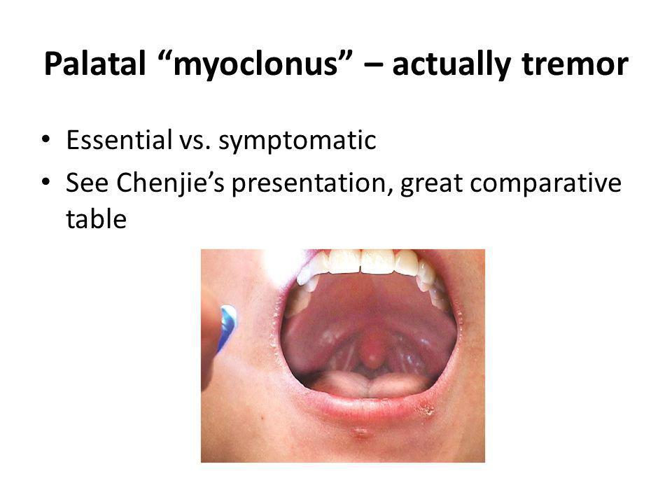 Palatal myoclonus – actually tremor Essential vs. symptomatic See Chenjies presentation, great comparative table