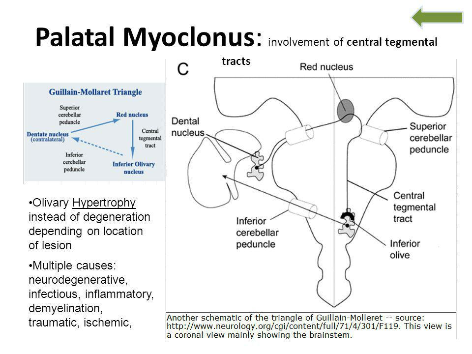 Palatal Myoclonus: involvement of central tegmental tracts Olivary Hypertrophy instead of degeneration depending on location of lesion Multiple causes