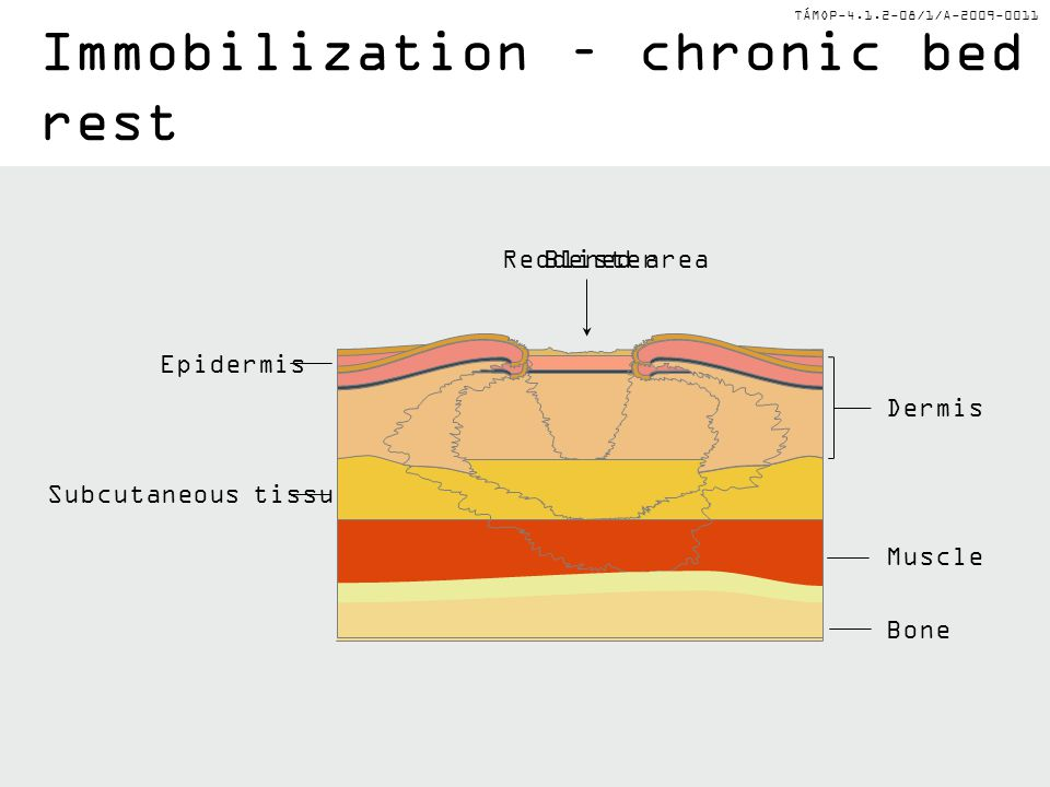 TÁMOP-4.1.2-08/1/A-2009-0011 Epidermis Subcutaneous tissue Muscle Dermis Bone Reddened area Immobilization – chronic bed rest Blister