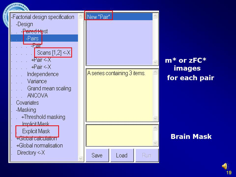19 Paired T test m* or zFC* images for each pair Brain Mask