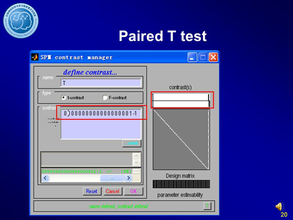 20 Paired T test