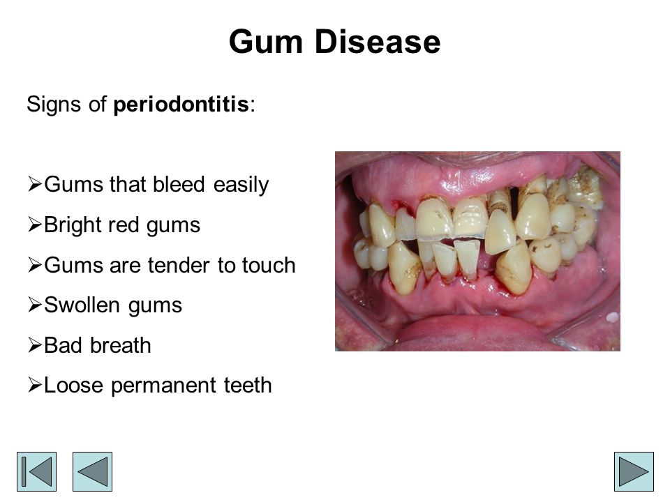 Gum Disease Signs of periodontitis: Gums that bleed easily Bright red gums Gums are tender to touch Swollen gums Bad breath Loose permanent teeth