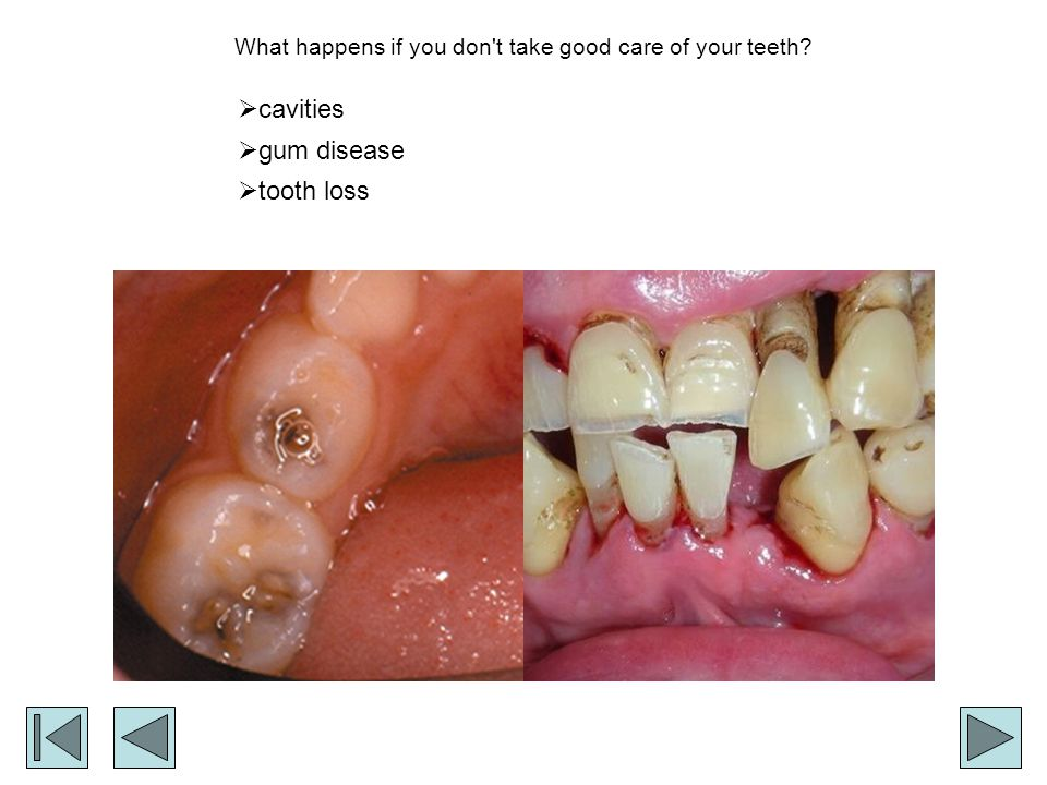 What happens if you don't take good care of your teeth? cavities gum disease tooth loss