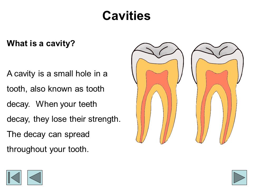 What causes cavities.One thing that plays a big part in causing cavities is plaque.