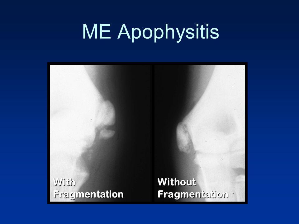 ME Apophysitis With Fragmentation Without Fragmentation