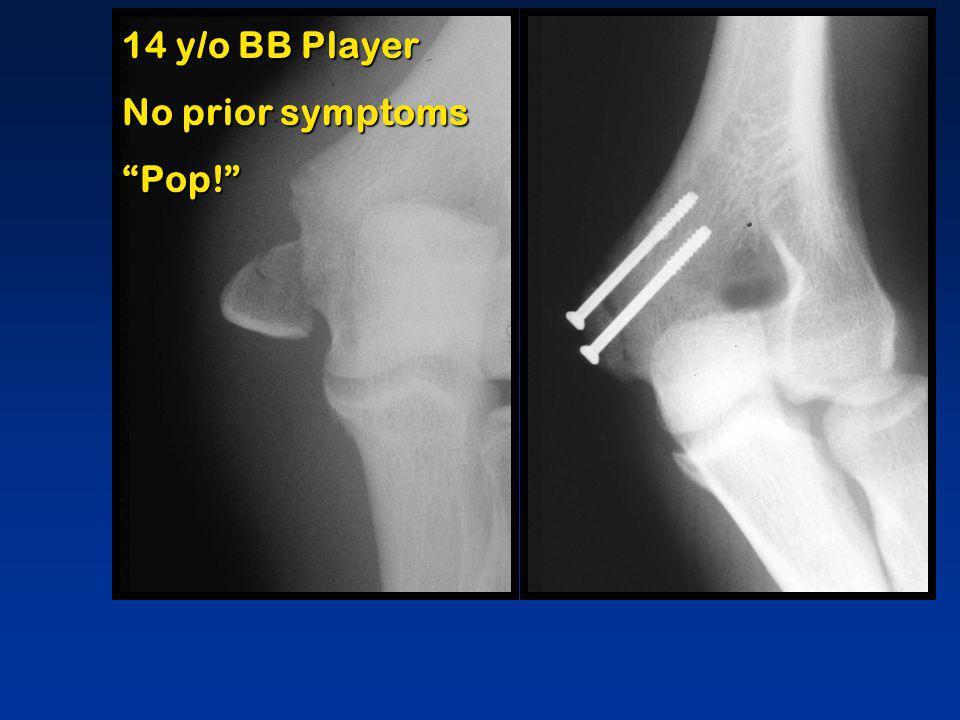 14 y/o BB Player No prior symptoms Pop!