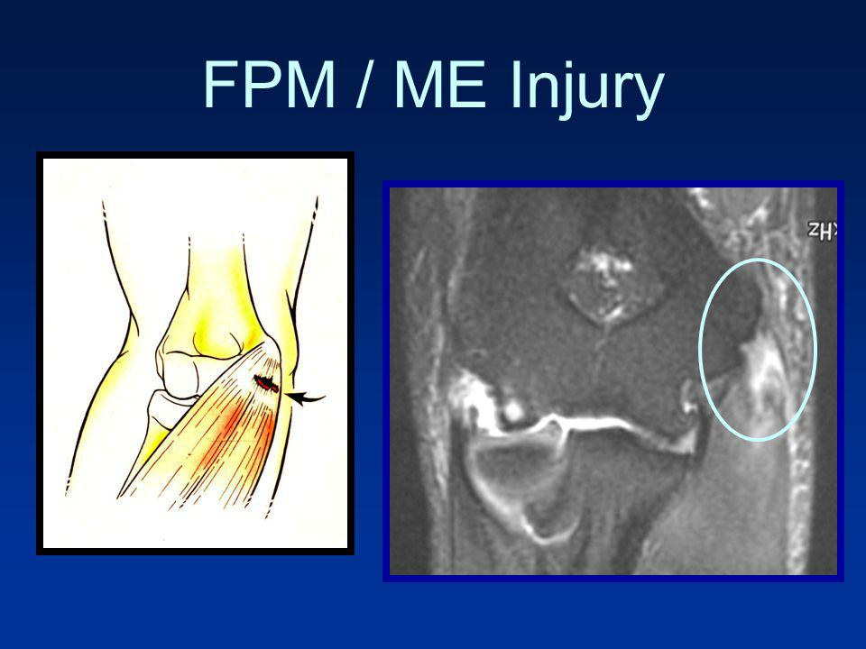 FPM / ME Injury