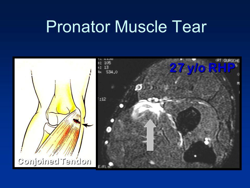 Pronator Muscle Tear 27 y/o RHP Conjoined Tendon