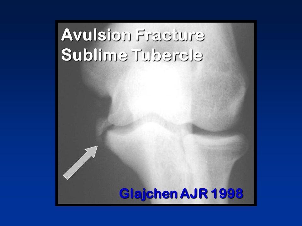 Glajchen AJR 1998 Avulsion Fracture Sublime Tubercle