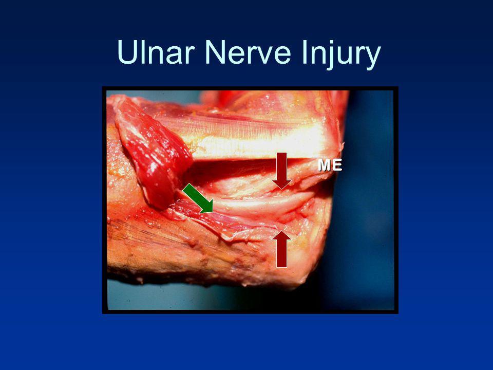 Ulnar Nerve Injury ME