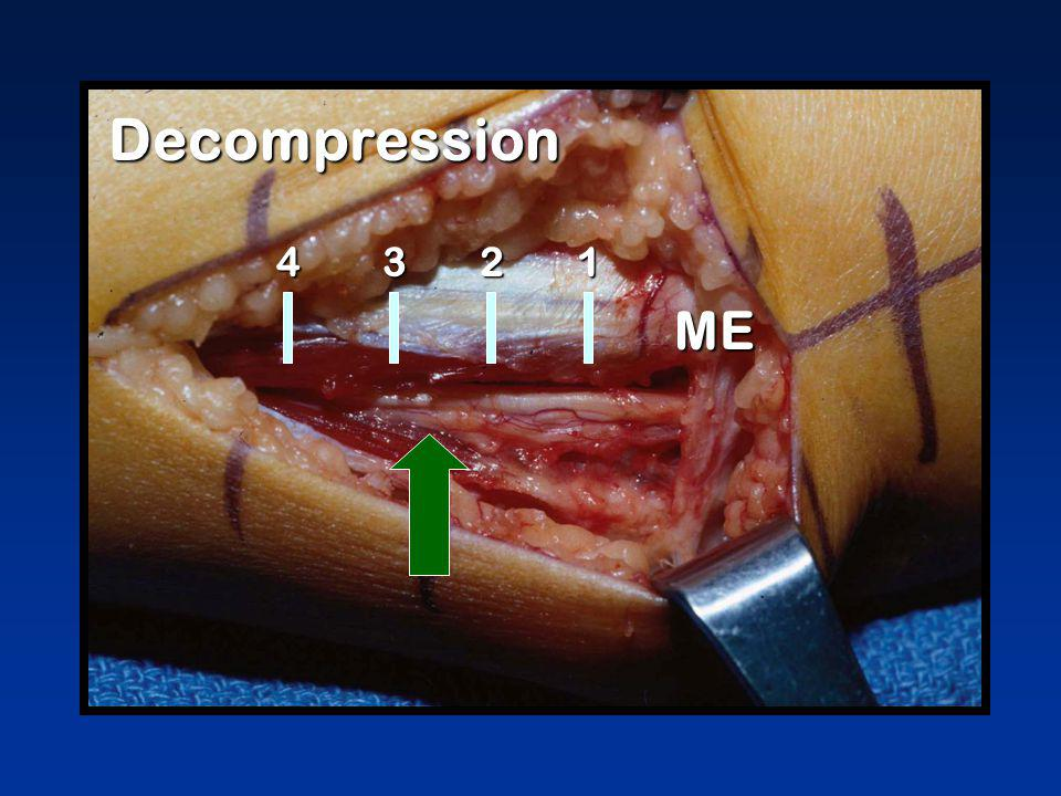 Decompression ME 1324