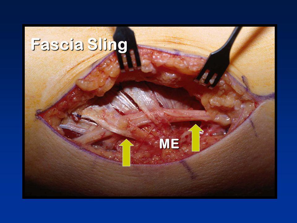 Fascia Sling ME