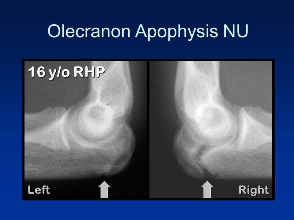 Olecranon Apophysis NU LeftRight 16 y/o RHP