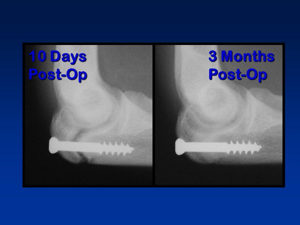 10 Days Post-Op 3 Months Post-Op