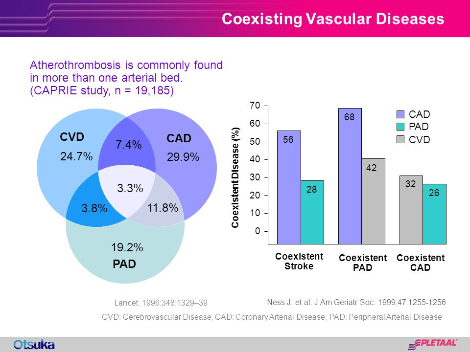 24.7% 3.8% 11.8% 29.9% 3.3% 7.4% 19.2% Coexisting Vascular Diseases CAD CVD PAD Lancet. 1996;348:1329–39 Atherothrombosis is commonly found in more th