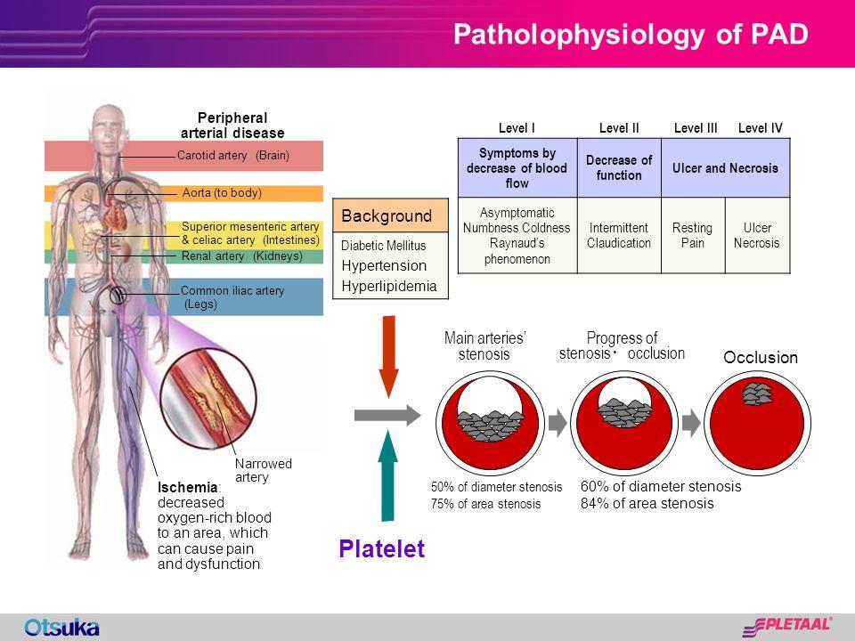 Background Diabetic Mellitus Hypertension Hyperlipidemia Level ILevel IILevel IIILevel IV Symptoms by decrease of blood flow Decrease of function Ulce