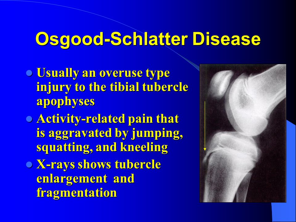 Osgood-Schlatter Disease Usually an overuse type injury to the tibial tubercle apophyses Usually an overuse type injury to the tibial tubercle apophys