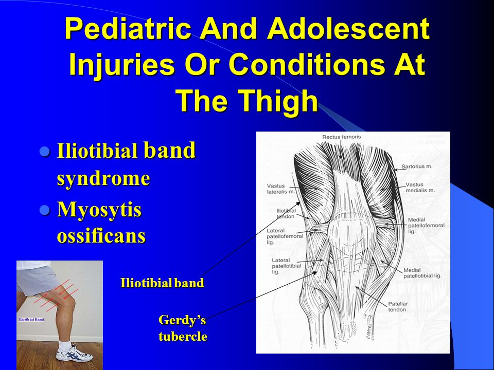 Pediatric And Adolescent Injuries Or Conditions At The Thigh Iliotibial band syndrome Iliotibial band syndrome Myosytis ossificans Myosytis ossificans