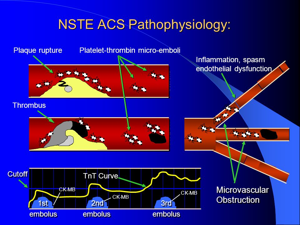 NSTE ACS Pathophysiology: Thrombus Microvascular Obstruction Microvascular Obstruction Platelet-thrombin micro-emboliPlaque rupture 1st 2nd 3rd CK-MB