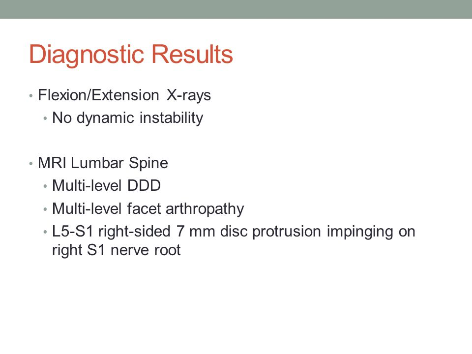 Diagnostic Results Flexion/Extension X-rays No dynamic instability MRI Lumbar Spine Multi-level DDD Multi-level facet arthropathy L5-S1 right-sided 7