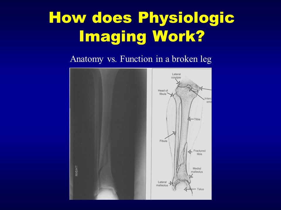 How does Physiologic Imaging Work? Anatomy vs. Function in a broken leg