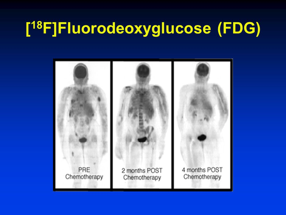 [ 18 F]Fluorodeoxyglucose (FDG)