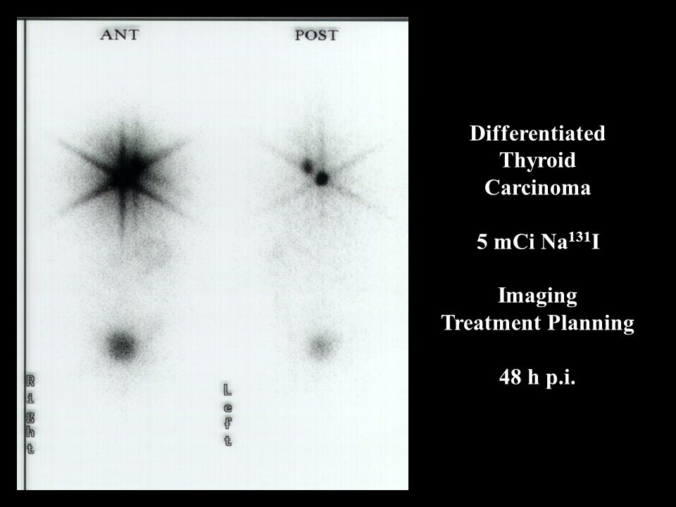 Differentiated Thyroid Carcinoma 5 mCi Na 131 I Imaging Treatment Planning 48 h p.i.