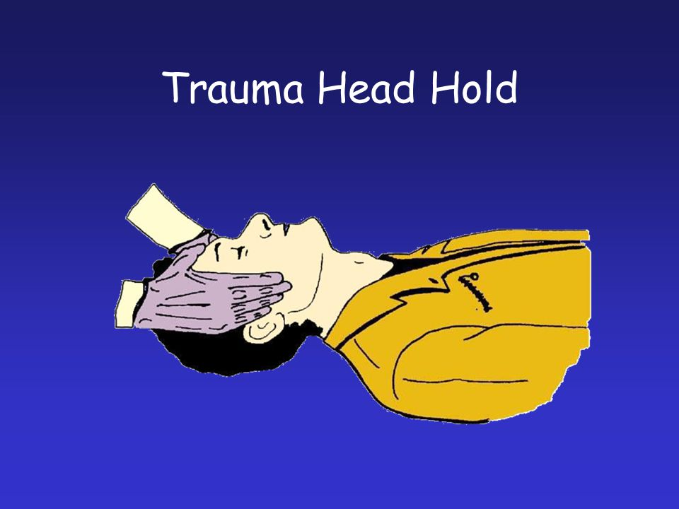 Trauma Head Hold