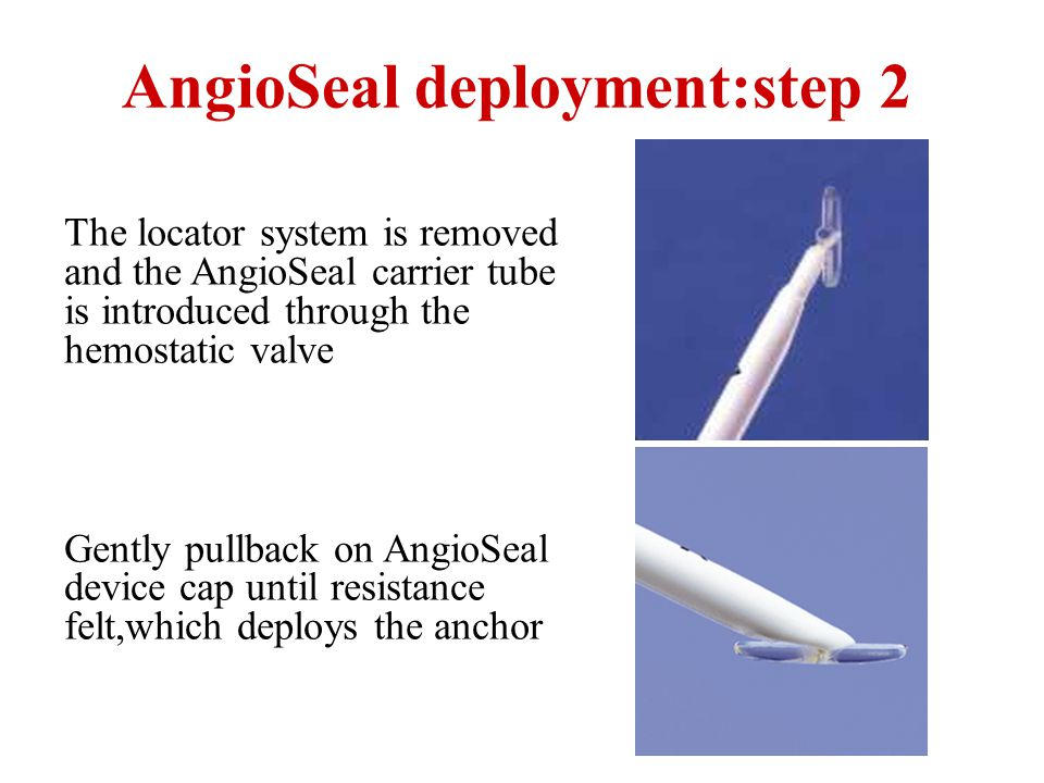 The locator system is removed and the AngioSeal carrier tube is introduced through the hemostatic valve Gently pullback on AngioSeal device cap until