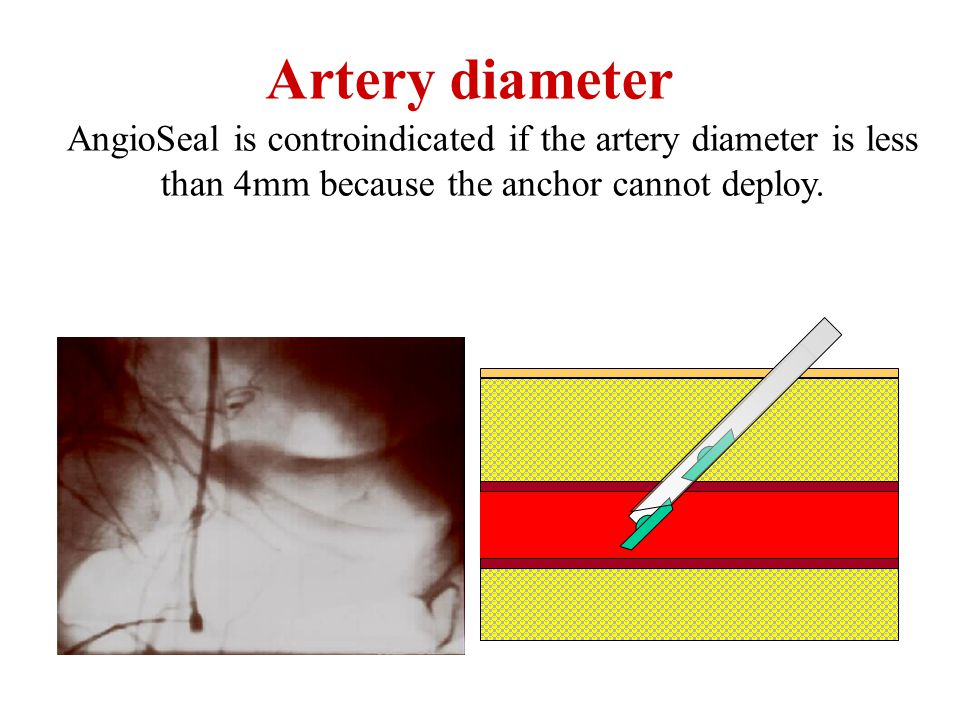Artery diameter AngioSeal is controindicated if the artery diameter is less than 4mm because the anchor cannot deploy.