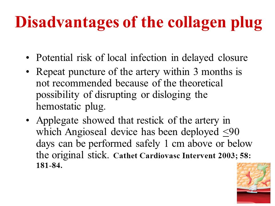 Disadvantages of the collagen plug Potential risk of local infection in delayed closure Repeat puncture of the artery within 3 months is not recommend