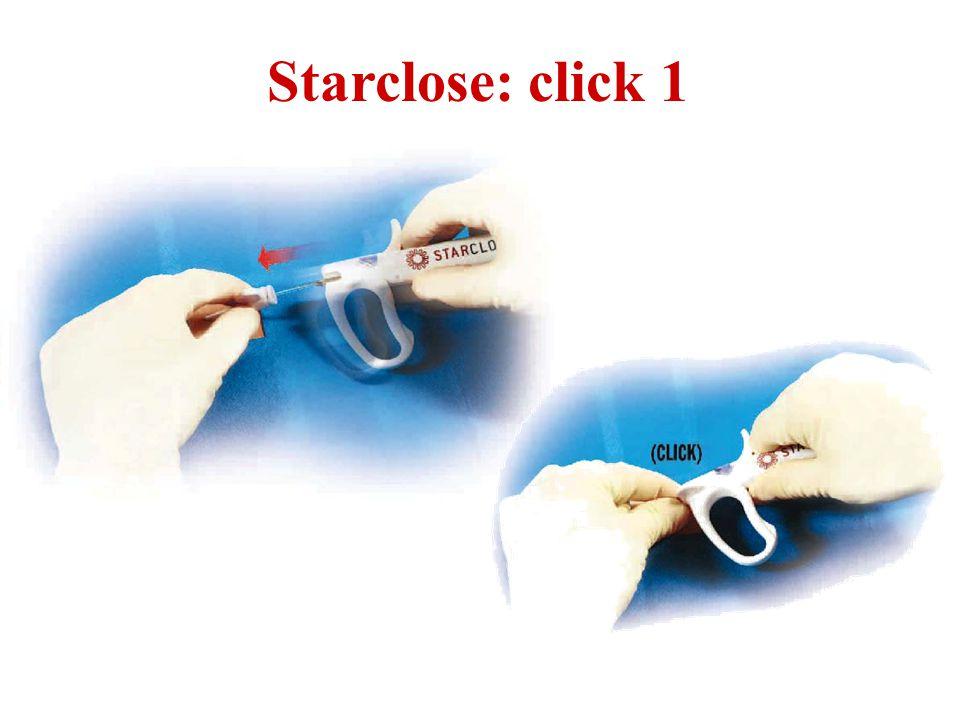 Starclose: click 1