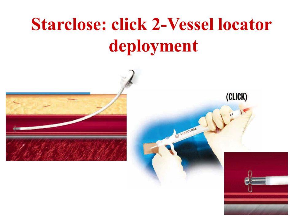 Starclose: click 2-Vessel locator deployment