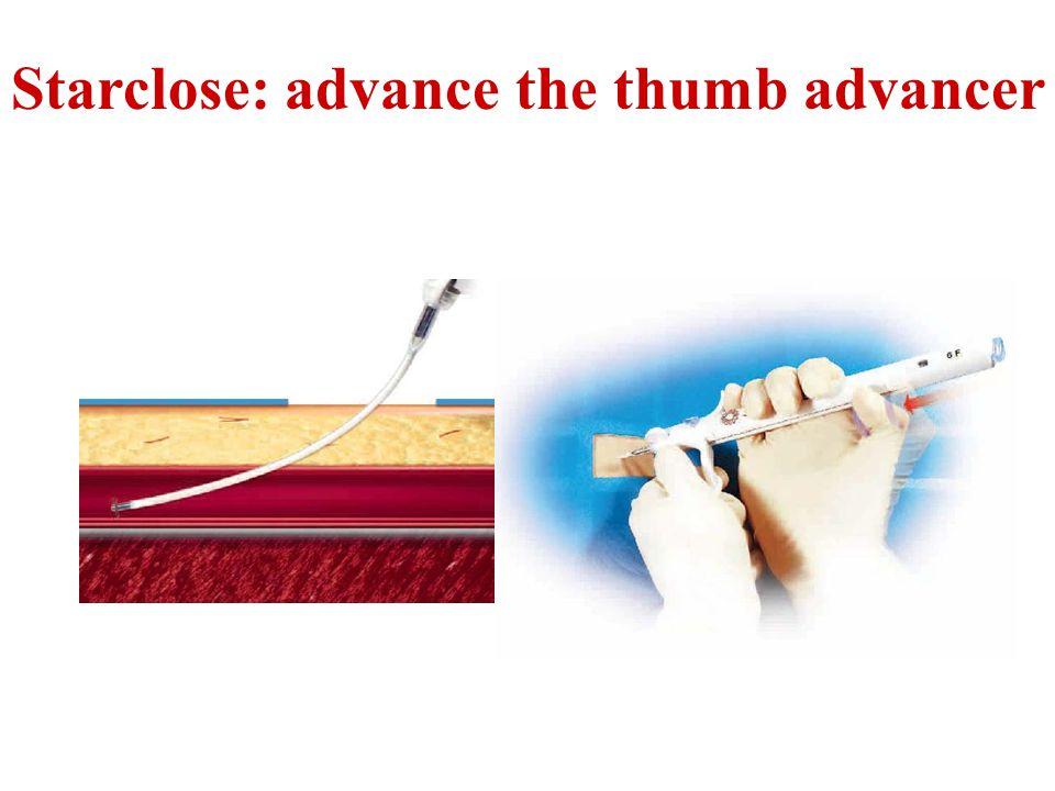 Starclose: advance the thumb advancer