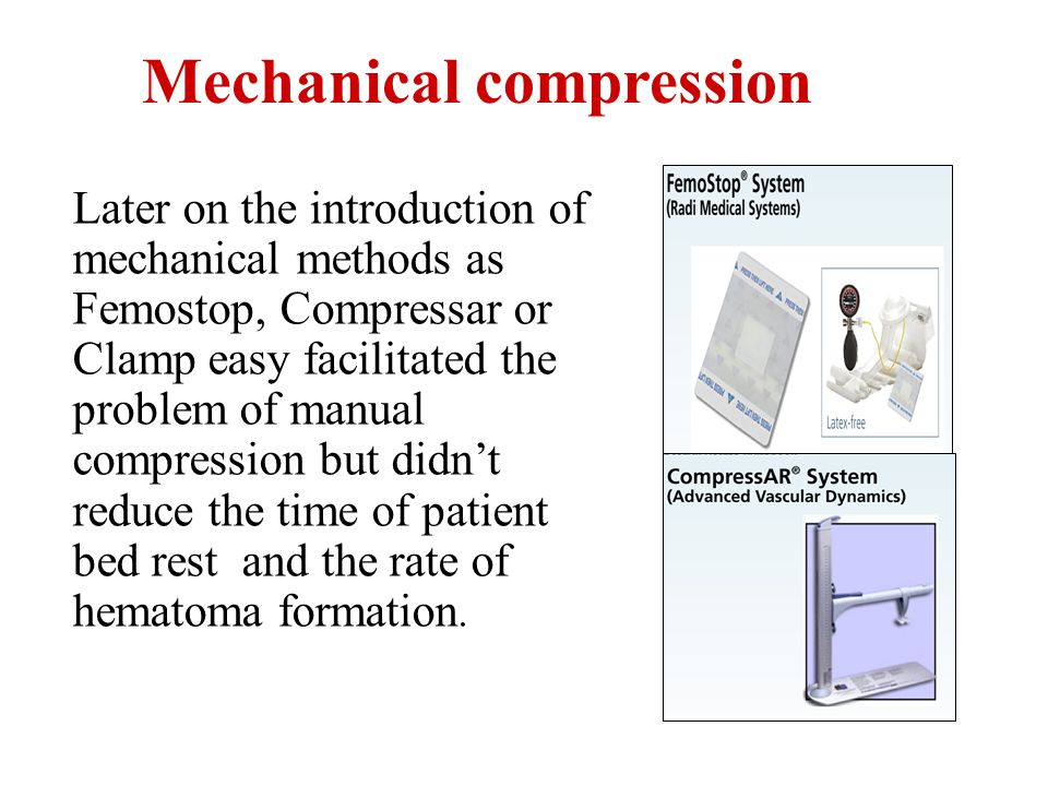 Later on the introduction of mechanical methods as Femostop, Compressar or Clamp easy facilitated the problem of manual compression but didnt reduce t