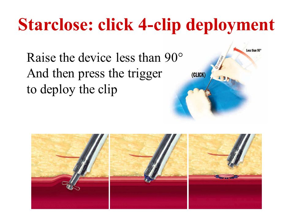 Starclose: click 4-clip deployment Raise the device less than 90° And then press the trigger to deploy the clip