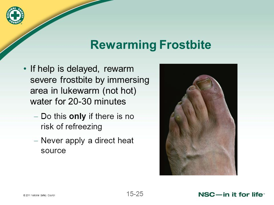 © 2011 National Safety Council 15-25 Rewarming Frostbite If help is delayed, rewarm severe frostbite by immersing area in lukewarm (not hot) water for 20-30 minutes Do this only if there is no risk of refreezing Never apply a direct heat source
