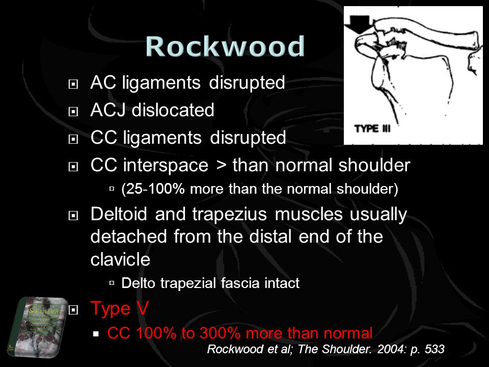 AC ligaments disrupted ACJ dislocated CC ligaments disrupted CC interspace > than normal shoulder (25-100% more than the normal shoulder) Deltoid and trapezius muscles usually detached from the distal end of the clavicle Delto trapezial fascia intact Type V CC 100% to 300% more than normal Rockwood et al; The Shoulder.