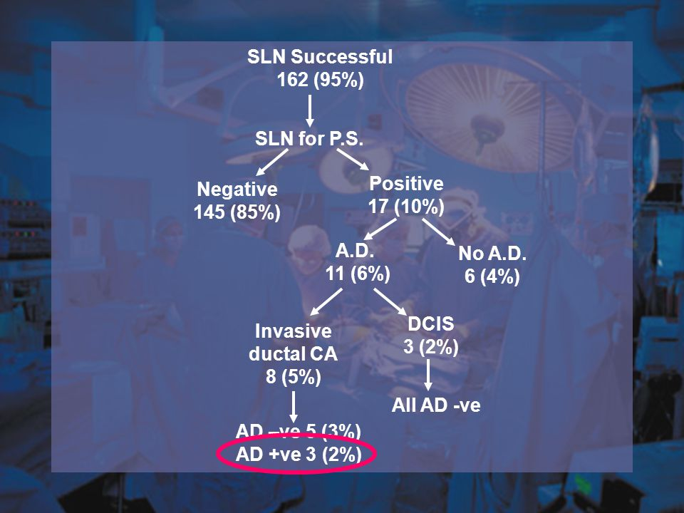 SLN Successful 162 (95%) Negative 145 (85%) Positive 17 (10%) A.D. 11 (6%) No A.D. 6 (4%) SLN for P.S. Invasive ductal CA 8 (5%) DCIS 3 (2%) All AD -v