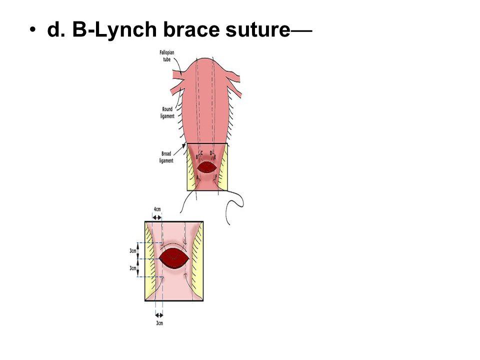 d. B-Lynch brace suture