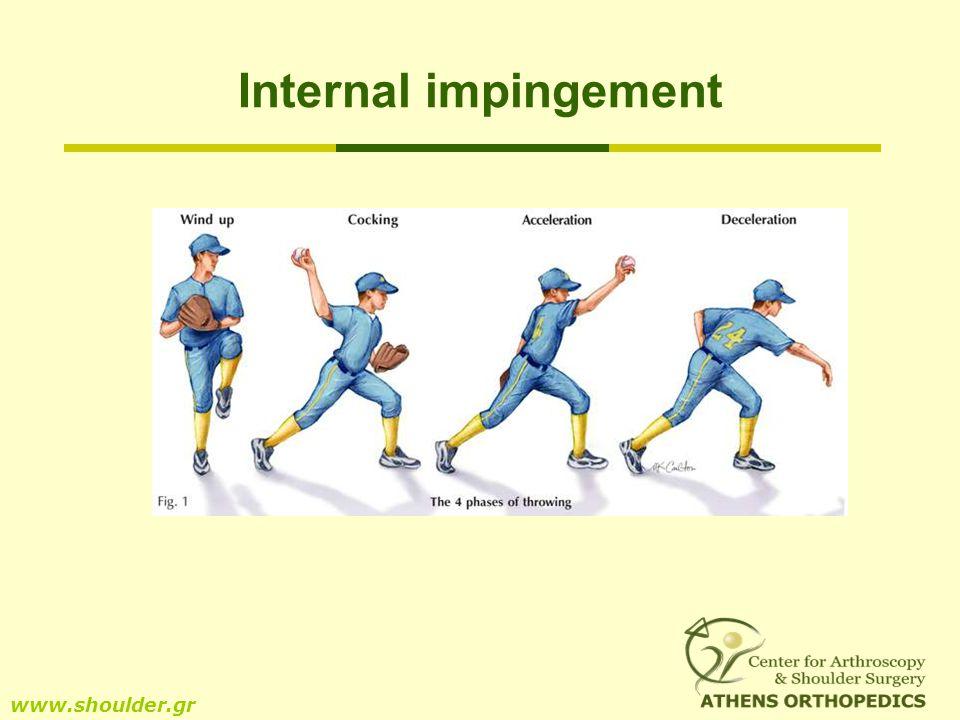 Internal impingement www.shoulder.gr