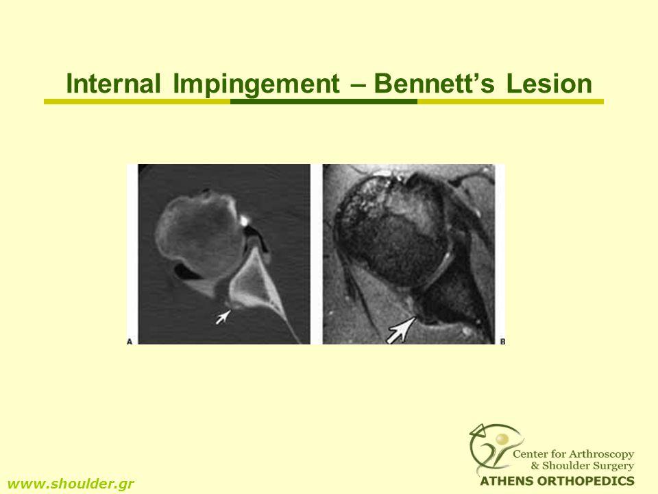 Internal Impingement – Bennetts Lesion