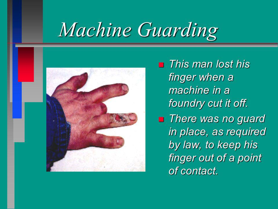 Machine Guarding n This man lost his finger when a machine in a foundry cut it off. n There was no guard in place, as required by law, to keep his fin