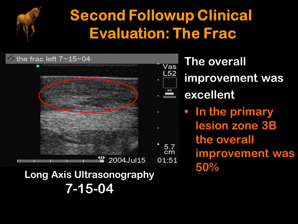 The overall improvement was excellent In the primary lesion zone 3B the overall improvement was 50% Long Axis Ultrasonography 7-15-04 Second Followup