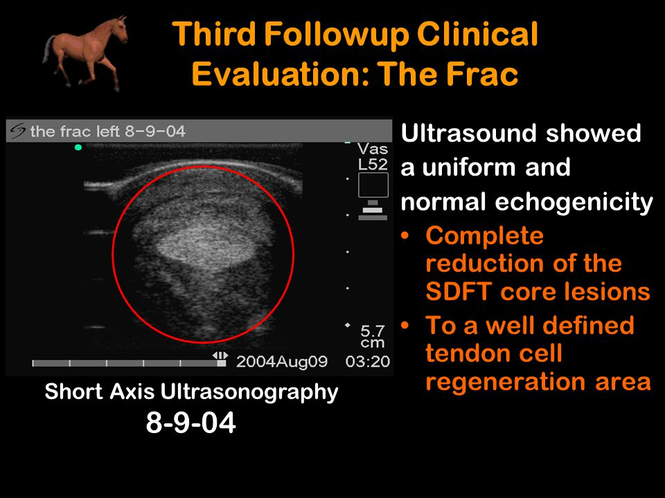 Ultrasound showed a uniform and normal echogenicity Complete reduction of the SDFT core lesions To a well defined tendon cell regeneration area Third