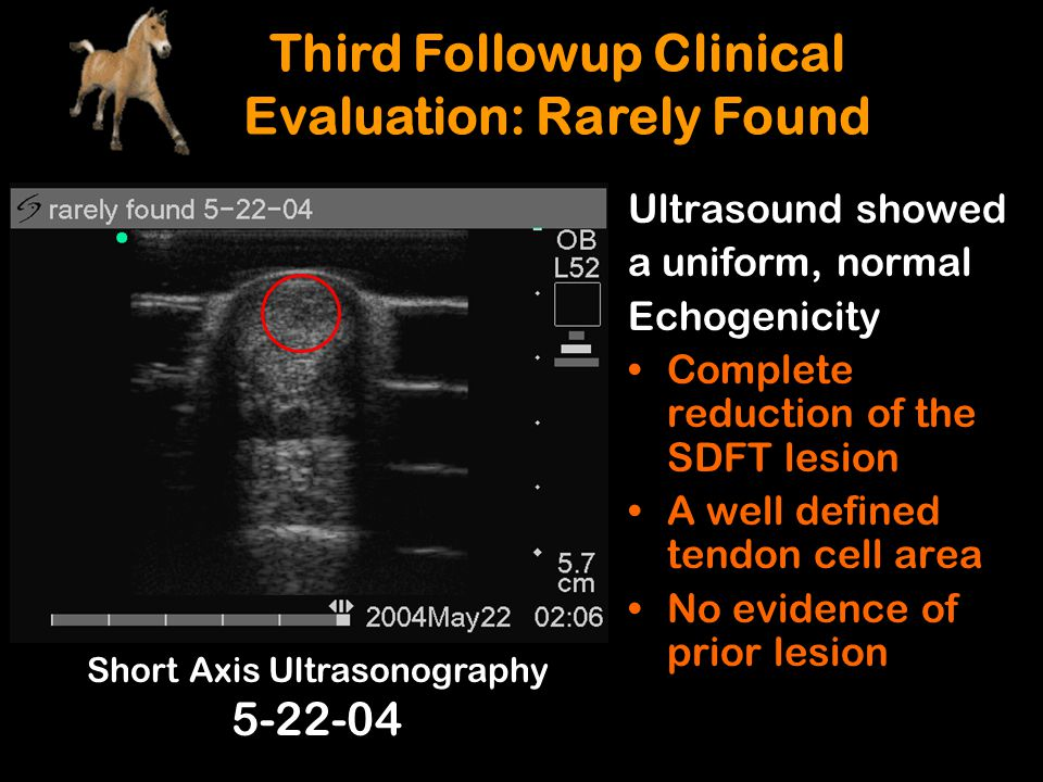 Ultrasound showed a uniform, normal Echogenicity Complete reduction of the SDFT lesion A well defined tendon cell area No evidence of prior lesion Sho