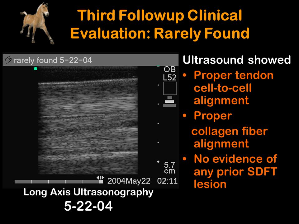 Long Axis Ultrasonography 5-22-04 Ultrasound showed Proper tendon cell-to-cell alignment Proper collagen fiber alignment No evidence of any prior SDFT